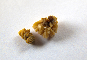 Remedies for The 5 Most Common Types of Kidney Stones - Kidney Atlas