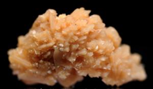 Calcium Phosphate Kidney Stones