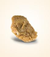 Uric Acid Kidney Stone